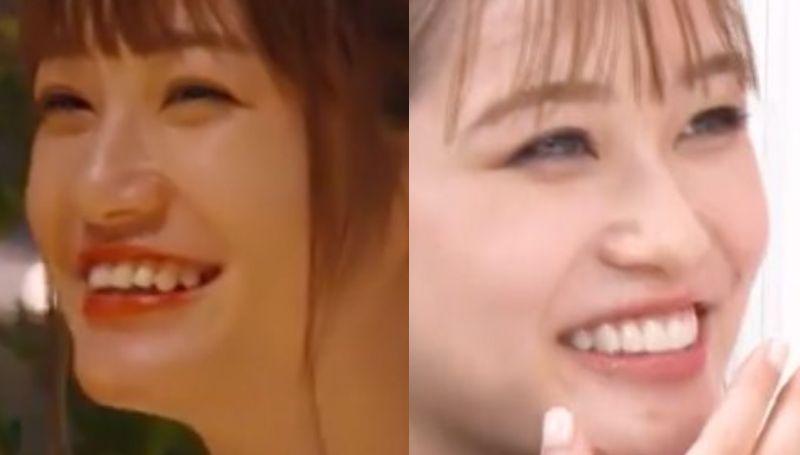 生見愛瑠は歯が残念で整形してるって本当?昔より今の方がかわいい!