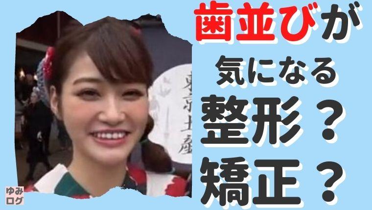 生見愛瑠は歯並びや顎が残念!整形じゃなくて矯正した?【画像比較】