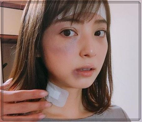 渡部健の佐々木希へのDV疑惑はデマ!痛々しい写真は特殊メイク!